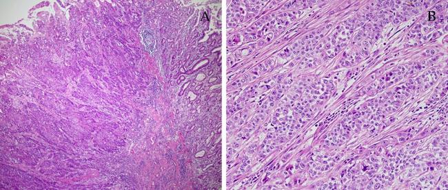 Рак желудка структура